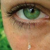 Žica u oku