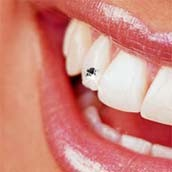 Ukrašeni zubi